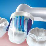 Modèle Oral-B Pro 600 White Clean pour assurer la santé des gencives